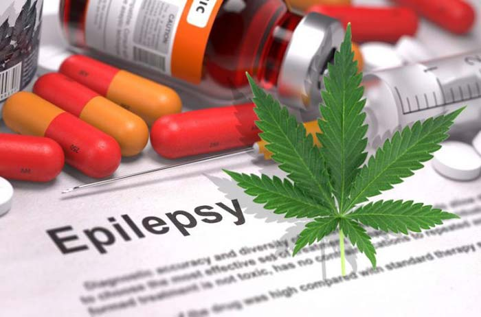 Cannabis as a treatment for epilepsy